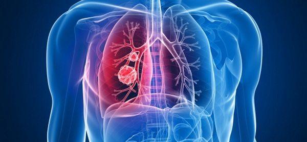 Исследователи из Ла-Риохи научились останавливать развитие метастазов при раке легких